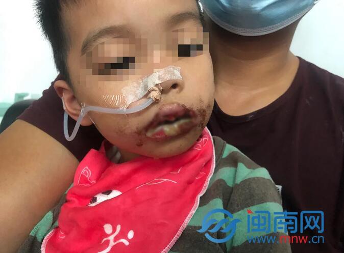 南安5岁男童误食管道疏通剂满嘴流血